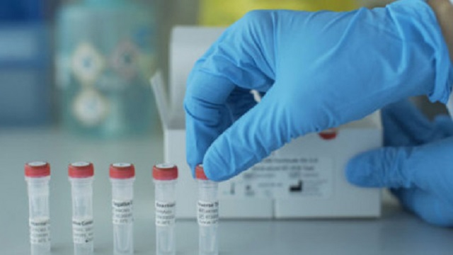 Coronavirus test lab goes into operation in Rajshahi
